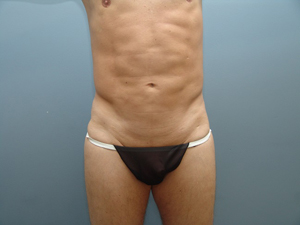 best plastic surgery men chicago abs