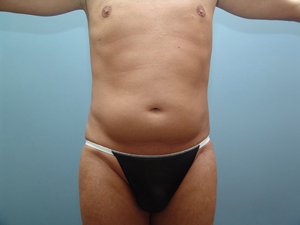 Chicago Liposuction and 3D Abdominal Etching - Best Gay Chicago