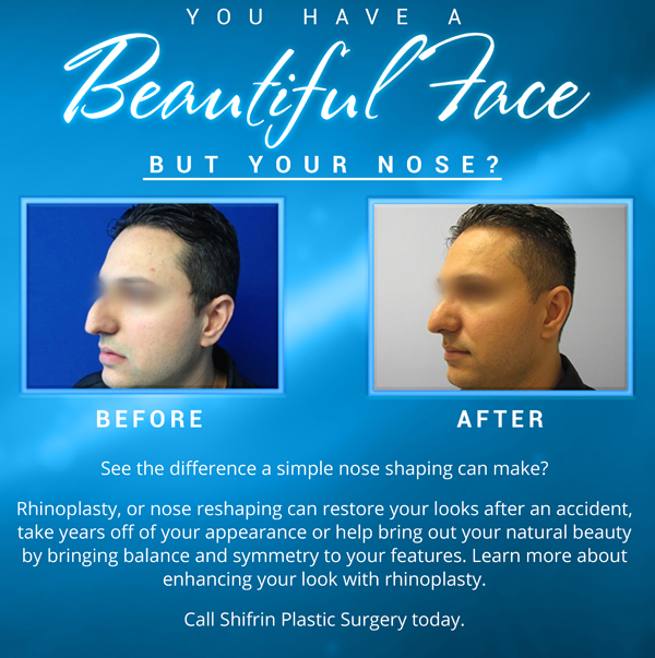 chicago-rhinoplasty-best-doctor