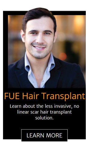 fue-hair-transplant-chicago